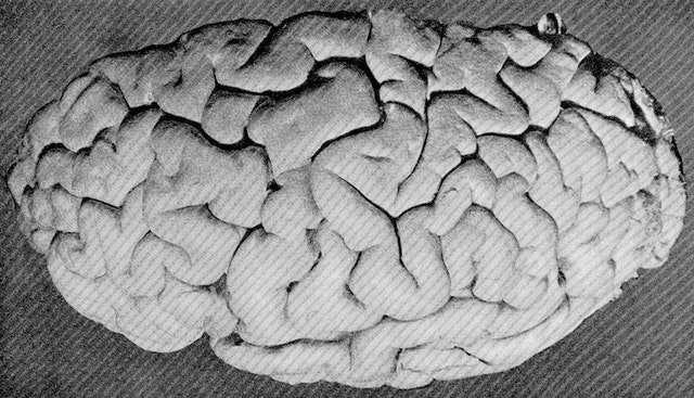 A Description of the Brain of Mr. Charles Babbage (1909)