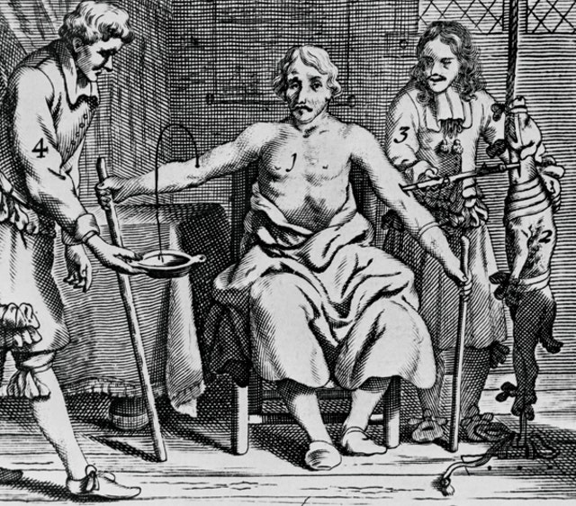 Arthur Coga's Blood Transfusion (1667)