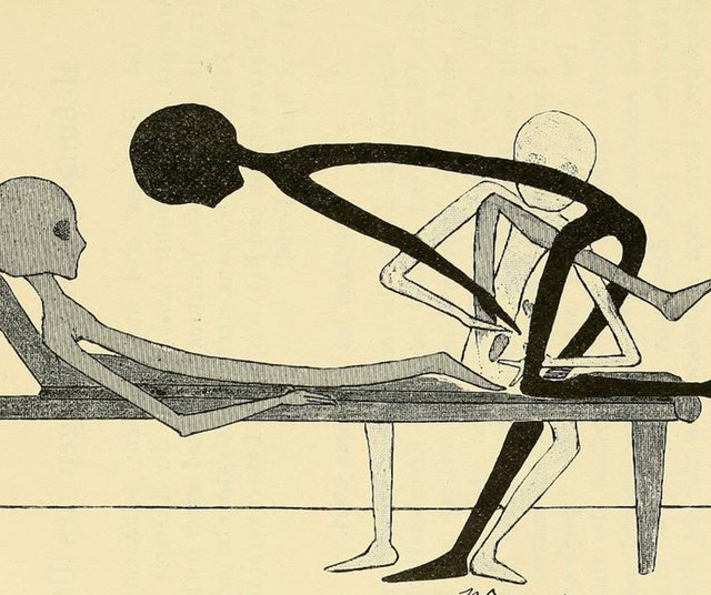 Gynecological Gymnastics from Outer Space (1895)