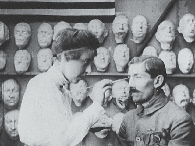 Plastic Reconstruction of the Face (1918)