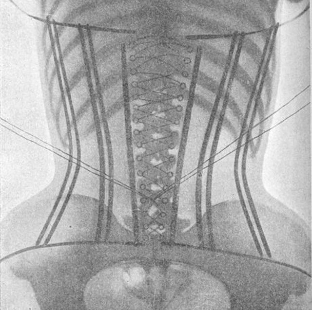 The Corset X-Rays of Dr Ludovic O'Followell (1908)