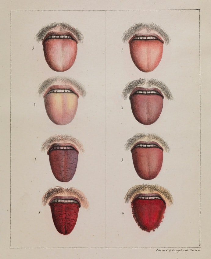 yellow fever tongue