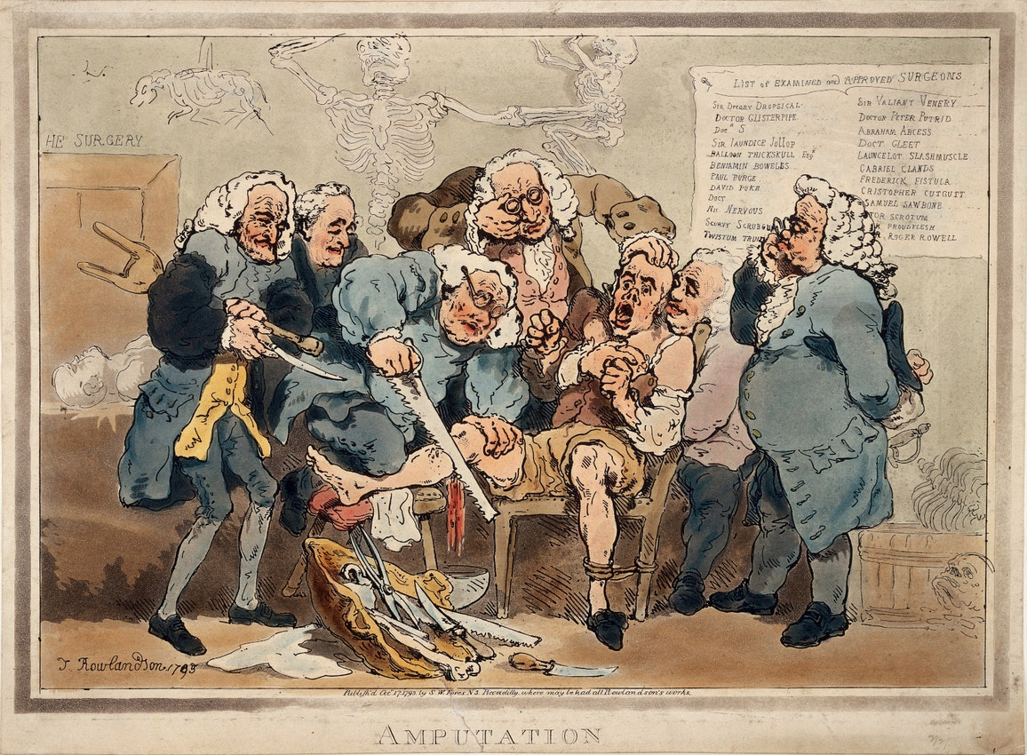 amputation by Thomas Rowlandson