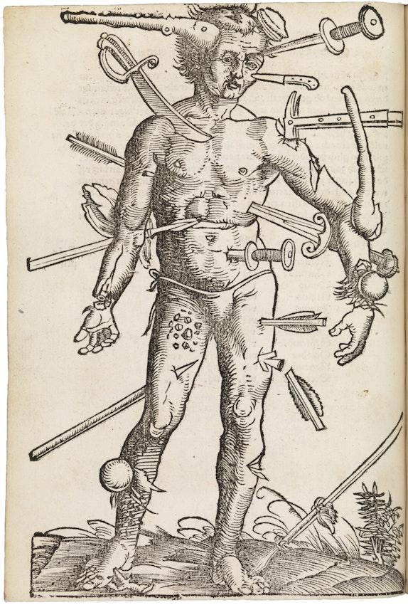 wound man