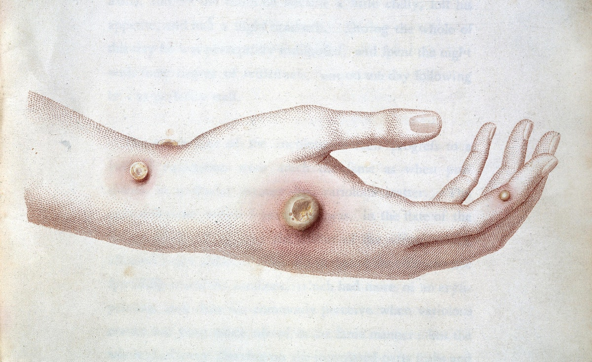 cowpox infection